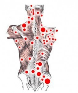 trigger points by southampton osteopath
